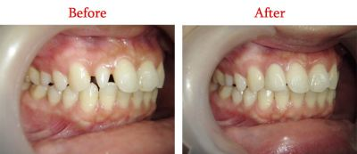 Convertion Of Peg Shape Incisor to Normal Shape