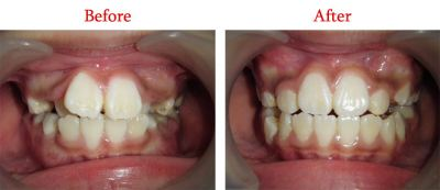 Correction Of Irregular Upper Front Teeth