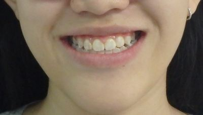 Ortho(Before and After)