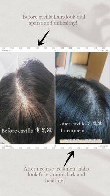 Hair Testimonies