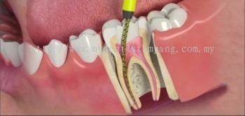 Root Canal Treatment - Posterior (Complex)