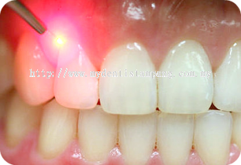 Gingivectomy (Simple)