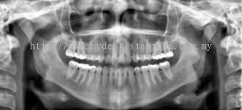 Dental Panoramic (Per Exposure)