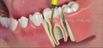 Root Canal Treatment - Posterior (simple)