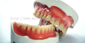 Denture Reline ( Chairside ) per arch