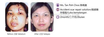 ProRenee Testimonial-Accident scar repair solution
