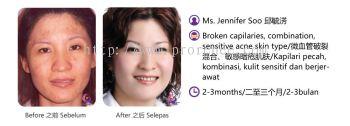 ProRenee Testimonial-Broken capilaries sensitive skin