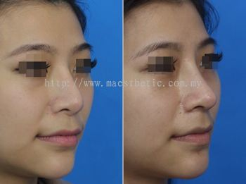 鼻子重修术