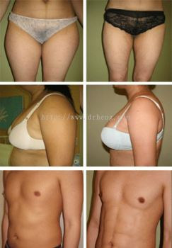 Liposuction / Liposelection®