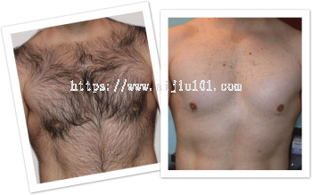 Permanent Chest Hair Laser Removal Treatment : ���ñ��㼤���ز���ë�Ƴ�