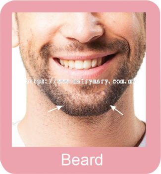 Permanent hair removal Beard
