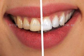Teeth Whitening Ư°×ÑÀ³Ý