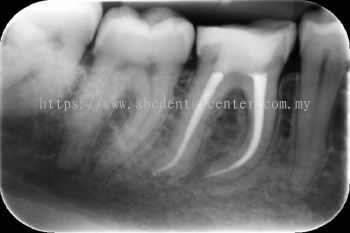 Root Canal Treatment 牙根治疗