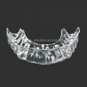 Removable retainer 牙齿固定器